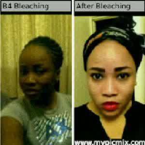 skin lightening products in nigeria